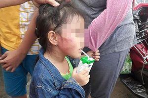 TPHCM: Bé gái 5 tuổi bị cô giáo mầm non tát nứt xương hàm?
