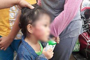 Vụ bé gái 5 tuổi bị tát sưng má, nứt xương hàm: Bắt khẩn cấp bảo mẫu đánh trẻ