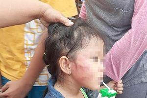 Bất ngờ với lời khai của bảo mẫu tát bầm tím mặt bé gái 5 tuổi ở TP.HCM