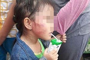 Bắt bảo mẫu bạo hành gái 5 tuổi trong cơ sở mầm non Ánh Sao Vàng