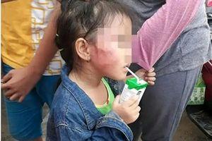 TP.HCM: Bắt khẩn cấp bảo mẫu bị tố đánh bé gái nứt xương hàm