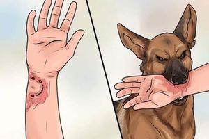 Kịp thời xử lý khi chó cắn