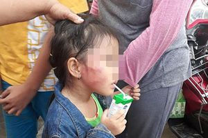 Vụ bé gái bị tát sưng mặt: Phát hiện cục máu bầm trong tai