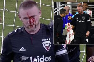 Cận cảnh pha chấn thương ghê rợn của Rooney