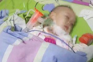 Vì một miếng táo hóc, cậu bé 2 tuổi nhiễm HIV