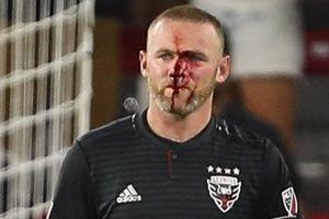 Rooney mặt đầm đìa máu trong ngày ghi bàn đầu tiên cho DC United