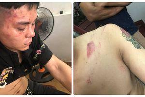 Công an quận Đồ Sơn lên tiếng vụ công an phường bị tố đánh người dân