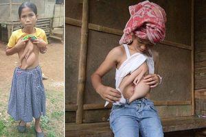 Xót xa cô bé 14 tuổi mang trên mình một phần cơ thể của chị em song sinh