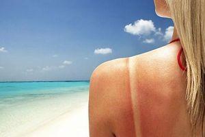 5 thực phẩm cứu làn da cháy nắng