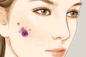 Cô gái trẻ bị ung thư da chỉ vì đi tẩy nốt ruồi