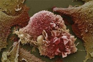 Sự phá hủy tàn khốc của tế bào ung thư