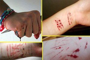 Nữ sinh tự hủy hoại bản thân bằng 16 vết cắt tay