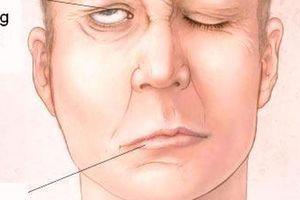 Cẩn thận biến dạng khuôn mặt vì cơn gió lạnh đầu mùa