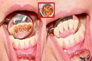 Ngậm 1 thìa đường trước khi đi ngủ, cao răng bật ra từng mảng, hôi miệng hàng chục năm cũng phải khỏi ngay vào sáng hôm sau