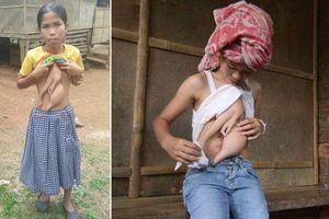 Bé gái 14 năm sống chung với 2 cánh tay thừa lủng lẳng trên ngực và bụng