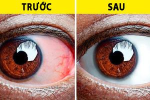 Thị lực suy giảm mạnh do lạm dụng công nghệ: 8 bài tập thể dục tốt nhất để 'cứu' đôi mắt