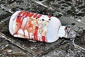 Thái Bình: Điều tra vụ việc 2 người đàn ông bị thanh niên lạ mặt tạt axit