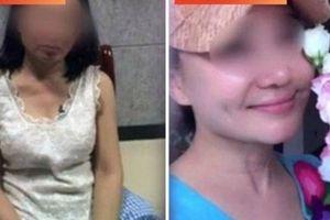 Bà già 60 tuổi phẫu thuật thành gái 20 tuổi để trốn nợ