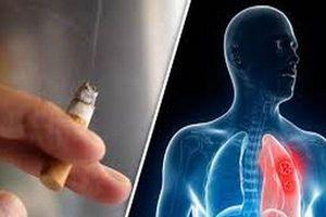 Nguyên nhân và những triệu chứng sớm của ung thư phổi