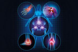 Tái tạo lại sụn, cải thiện thành công bệnh viêm khớp với liệu pháp y học tái sinh