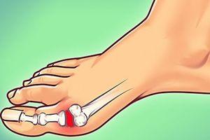 7 lời khuyên của bác sĩ giúp giảm nỗi đau bệnh gout
