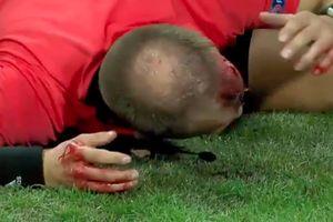 Sốc: trọng tài bị ném vỡ đầu tại Europa League