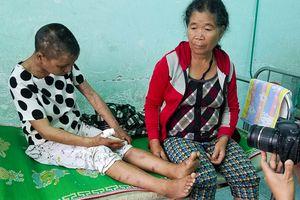 Truy tìm 5 người liên quan vụ bạo hành dã man ở Gia Lai