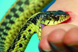 Khi bị rắn cắn, phải sơ cứu như thế nào?