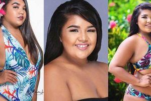 Thí sinh Hoa hậu Hoàn vũ Guam gây bàn tán vì quá béo