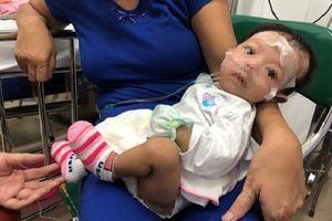 Cứu bé gái 2 tháng tuổi mắc bệnh hiếm gặp hình thành từ lúc bào thai
