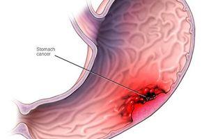 Tăng nguy cơ mắc ung thư dạ dày vì thói quen ăn mặn