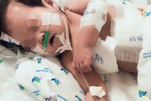 Ngã vào ấm đun siêu tốc, bé gái 20 tháng tuổi bỏng nước thương tâm