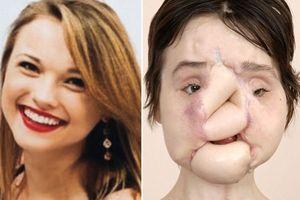 Cô gái dùng súng bắn vào mặt mình đã được cấy ghép gương mặt xinh đẹp
