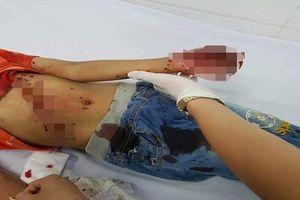 Nghệ An: Đồ chơi chạy bằng pin phát nổ, bé 8 tuổi nhập viện cấp cứu