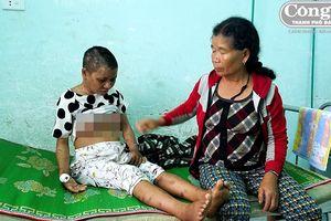 Vụ cô gái bị chủ hành hạ, đánh đập ở Gia Lai: Truy tìm người liên quan đến vụ án