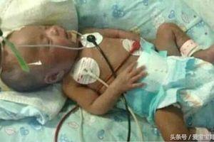Cậu bé 10 ngày tuổi bị nhiễm trùng máu nặng vì bàn tay vô ý của mẹ