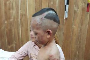 Khởi tố gã cha dượng đánh đập dã man bé trai 3 tuổi ở Phú Quốc