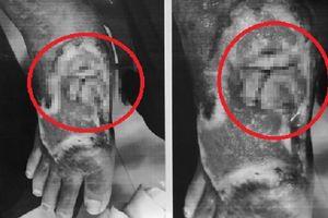 Bị rắn cắn: Nhiều ca hoại tử chân, tay vì đắp thuốc lá nam