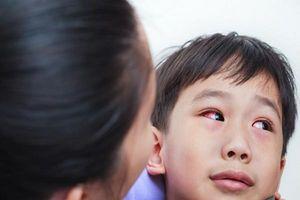 Trẻ bị đau mắt đỏ: Dấu hiệu và cách chăm sóc trẻ tại nhà để nhanh khỏi bệnh
