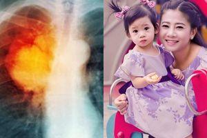 Ung thư phổi là gì, ung thư phổi có chữa được không?