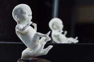 Startup: Mốt tạo hình 3D 'thiên thần' trong bụng mẹ