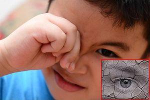 Gặp 5 dấu hiệu cảnh báo này, cha mẹ cần cho trẻ đi khám mắt ngay