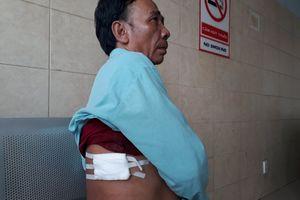 2 'hiệp sĩ' bị đâm trọng thương trong lúc truy bắt nghi can trộm cắp ở Đồng Nai
