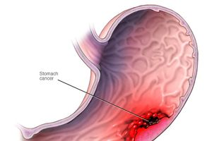 Triệu chứng chẩn đoán ung thư dạ dày