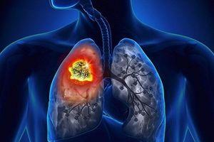 Những dấu hiệu sớm cảnh báo bệnh ung thư phổi