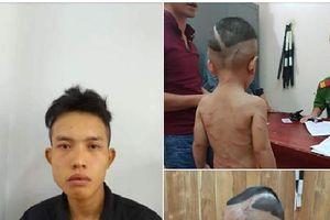 Thông tin mới nhất vụ cháu bé 3 tuổi bị cha dượng hành hung tại Phú Quốc