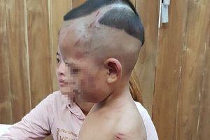 Bị cha dượng đánh dã man vì quấy khóc, bé 3 tuổi thương tật 24%