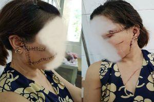Bắc Giang: Vợ 'tố' chồng nhẫn tâm dùng dao rạch nát mặt vợ vì ghen tuông