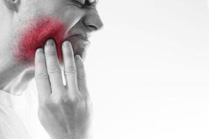 Bệnh sâu răng đã đeo đuổi loài người từ thời xa xưa