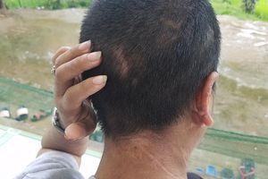 Vụ bạo hành người giúp việc: Nạn nhân khai nhiều hình thức bị tra tấn